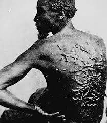 Photograph of a slave with scars from being whipped
