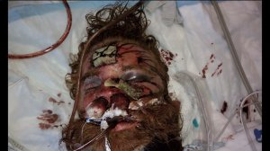 Kelly Thomas in the hospital Photo KTLA