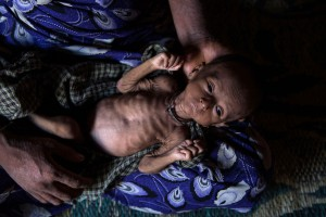 Rohingya Refugees Face Health Crisis As Myanmar
