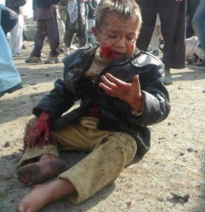 A boy is wounded and stunned following a drone strike in Pakistan. Getty Images.